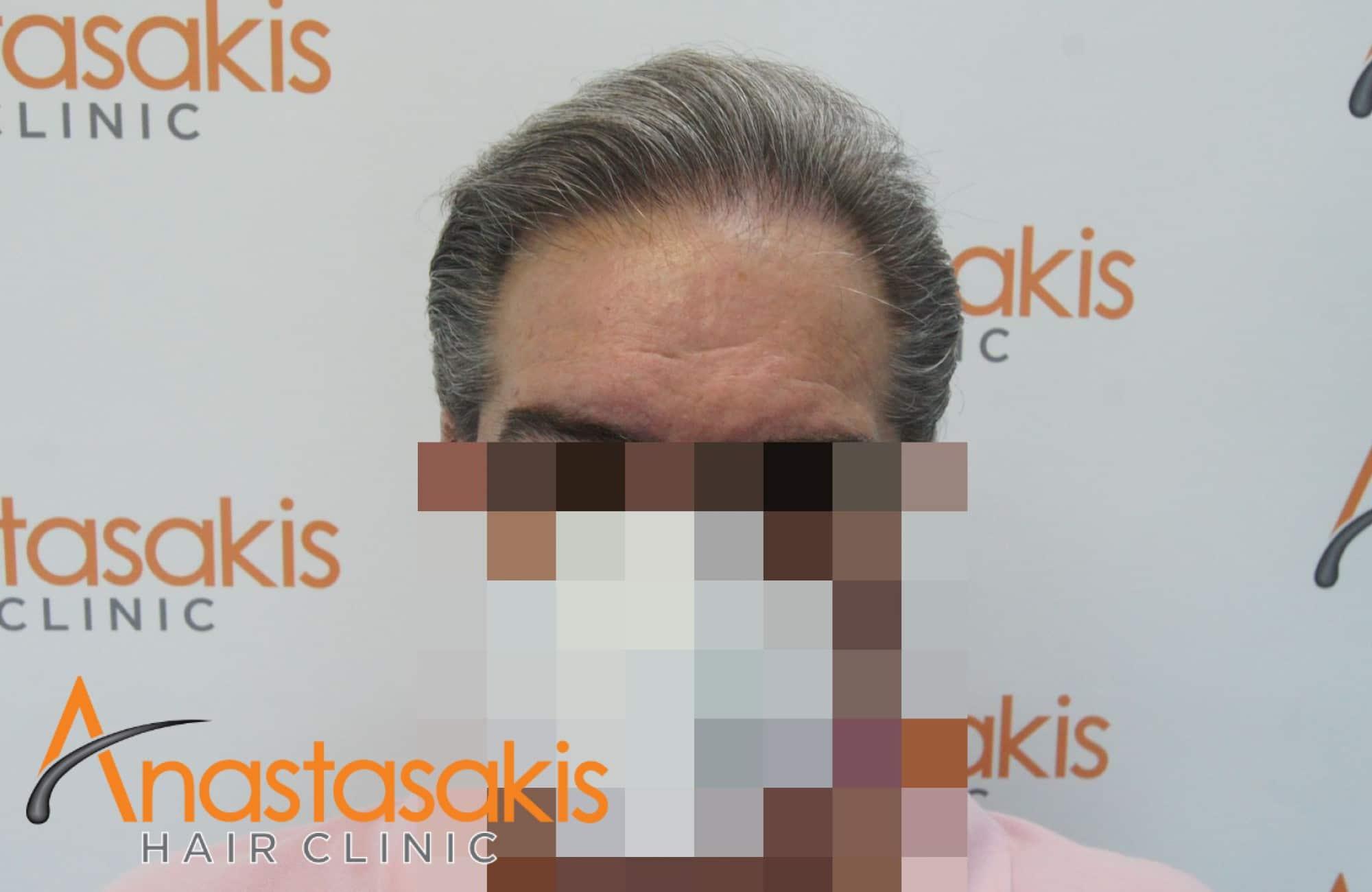 fullface 10 μηνες μετα τη μεταμοσχευση μαλλιων με 4008 fus