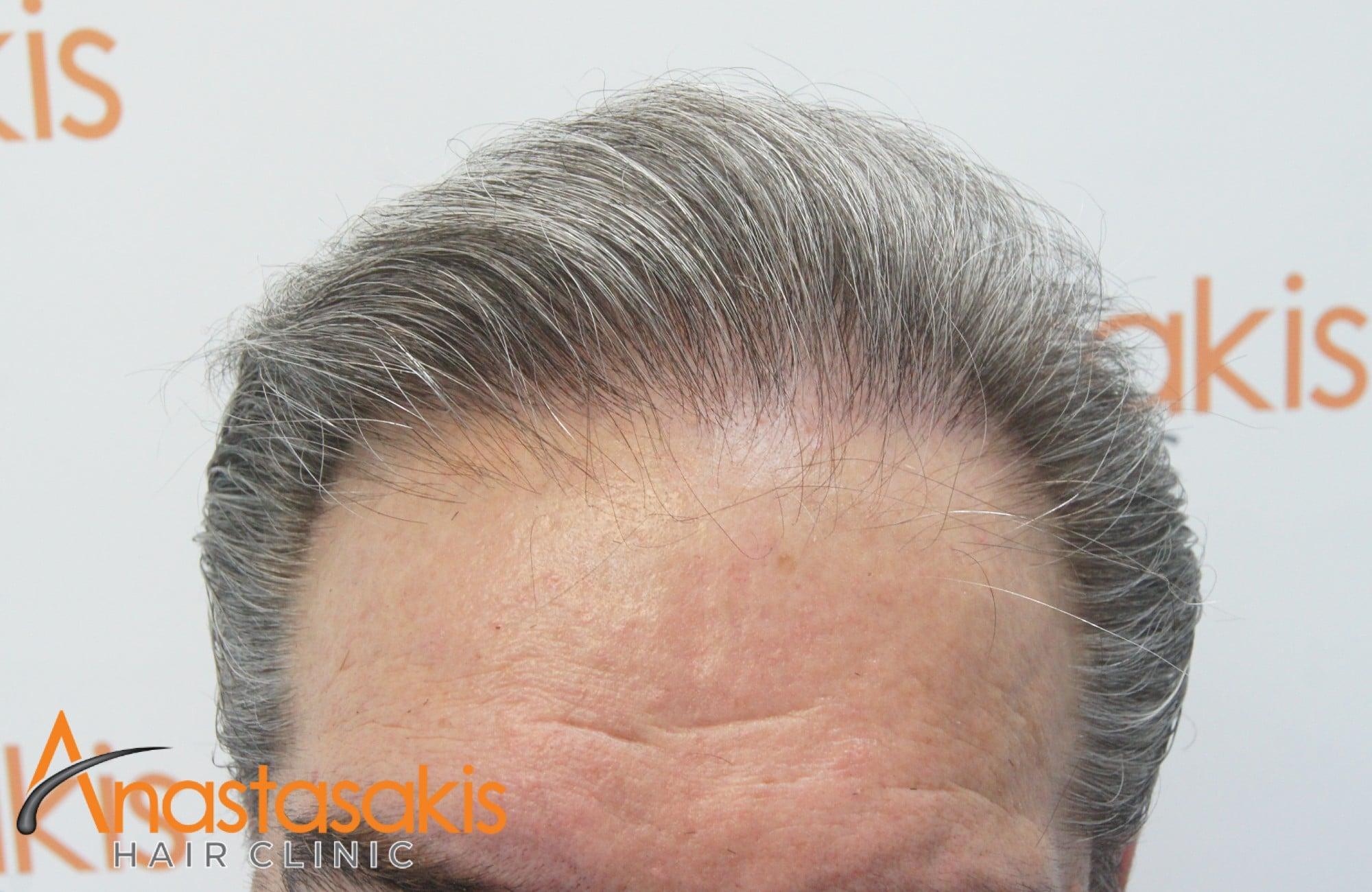 hairline 10 μηνες μετα τη μεταμοσχευση μαλλιων με 4008 fus