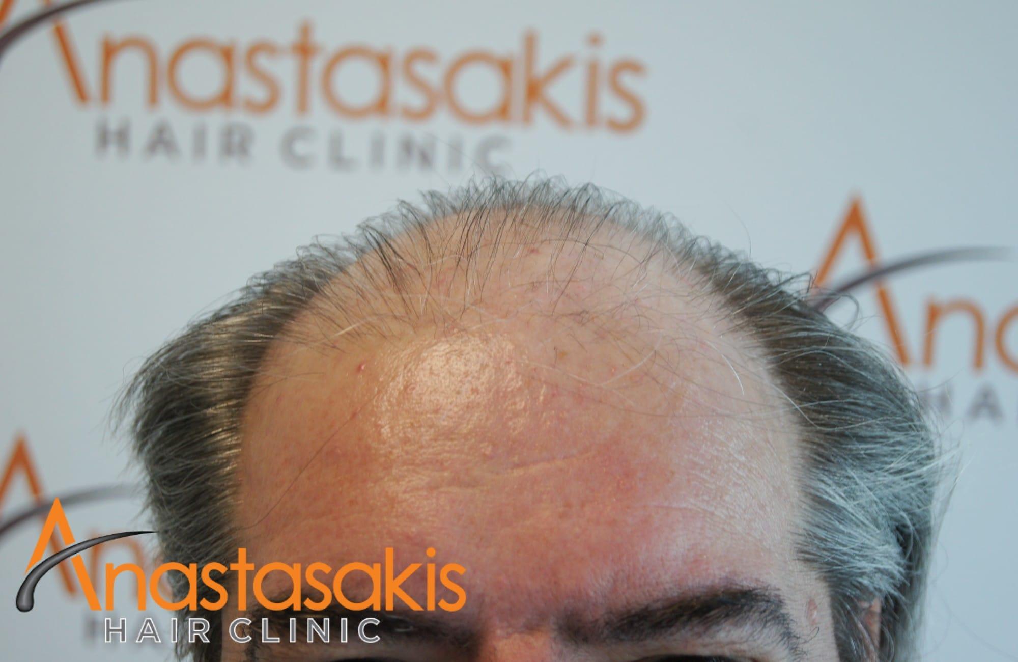 hairline πριν τη μεταμοσχευση μαλλιων με 4008 fus