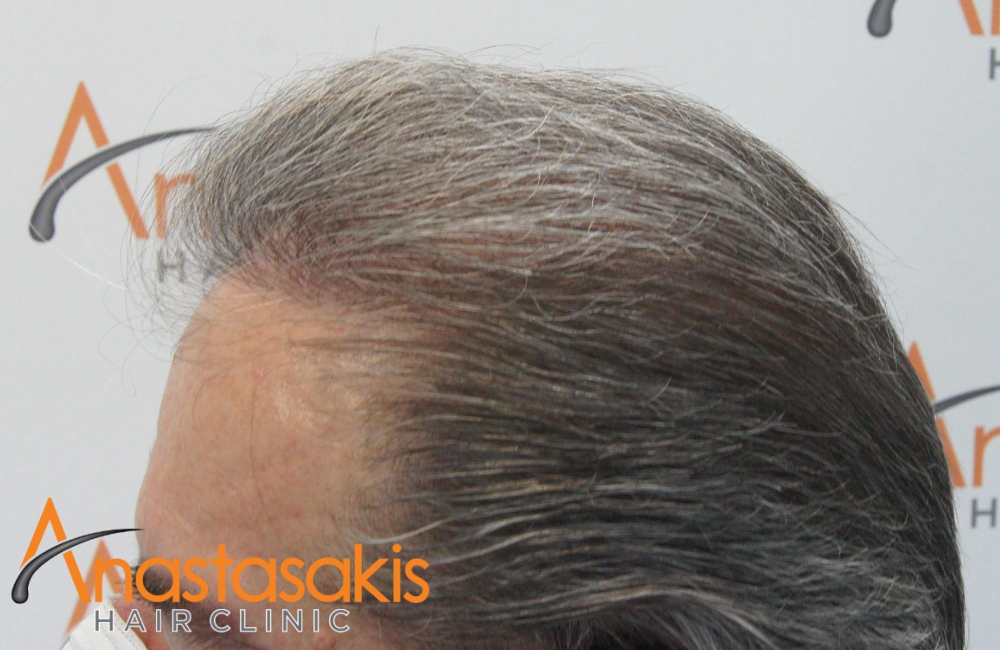 αριστερο προφιλ 10 μηνες μετα τη μεταμοσχευση μαλλιων με 4008 fus