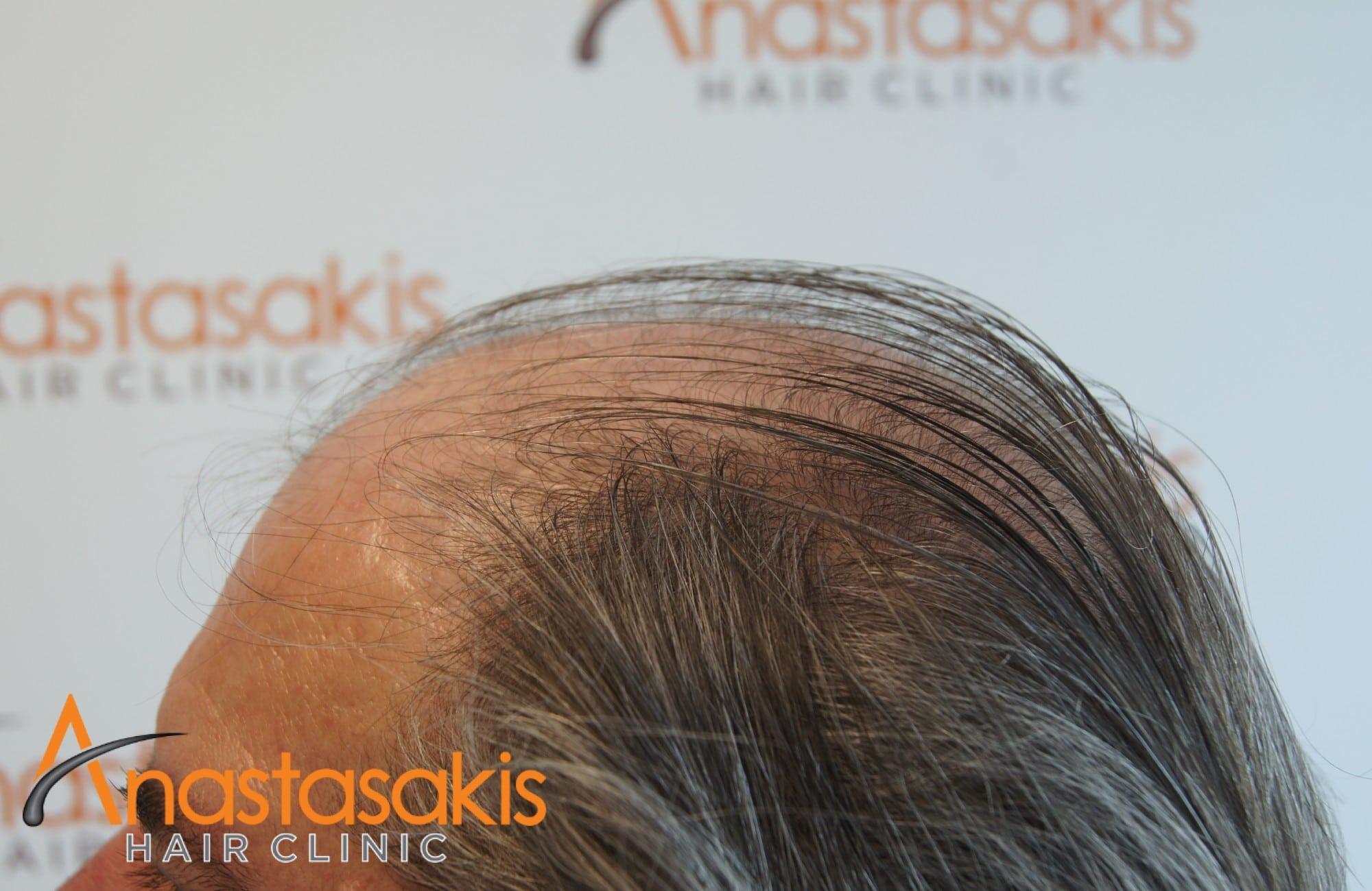 αριστερο προφιλ πριν τη μεταμοσχευση μαλλιων με 4008 fus