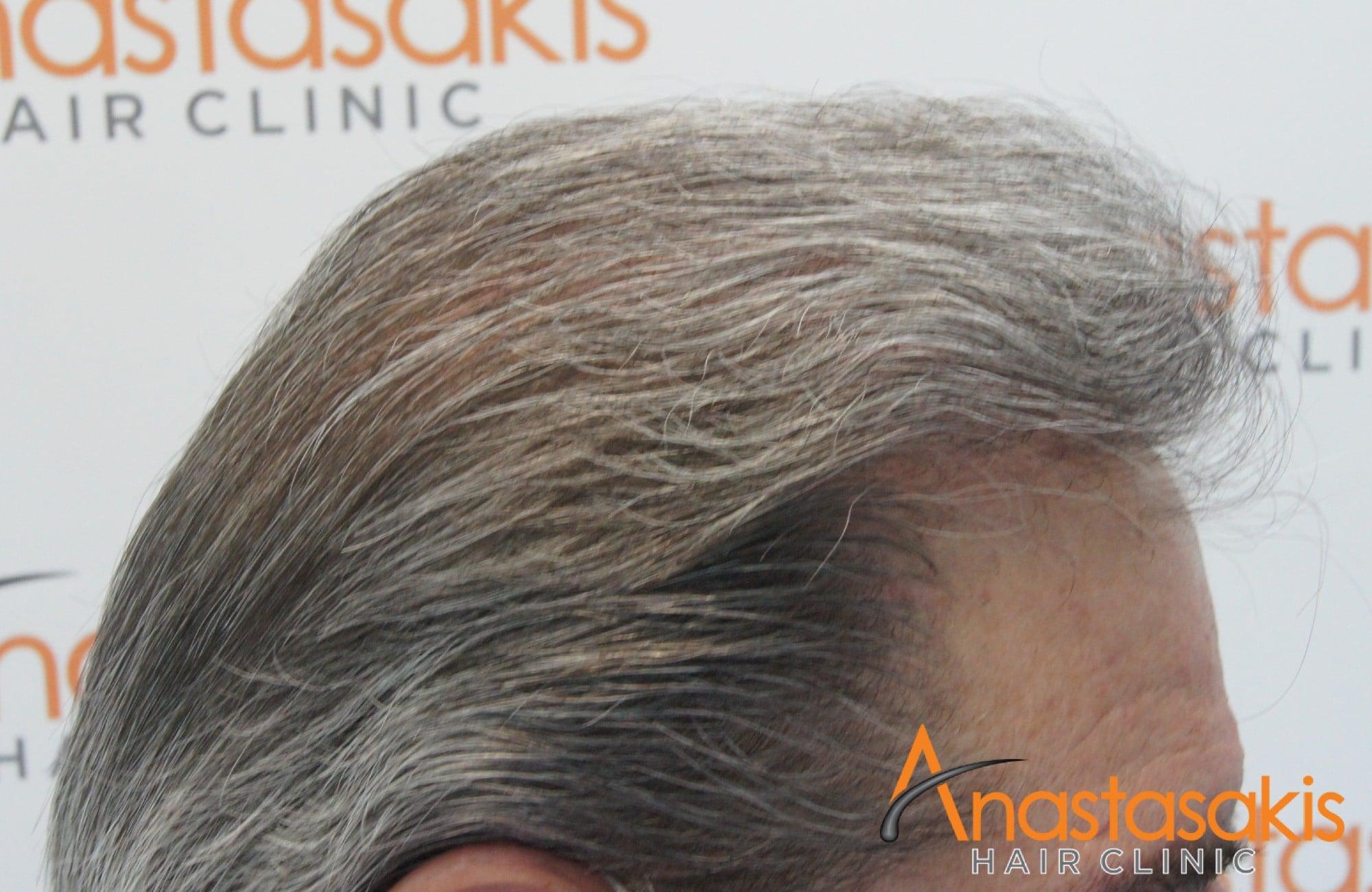 δεξι προφιλ 10 μηνες μετα τη μεταμοσχευση μαλλιων με 4008 fus