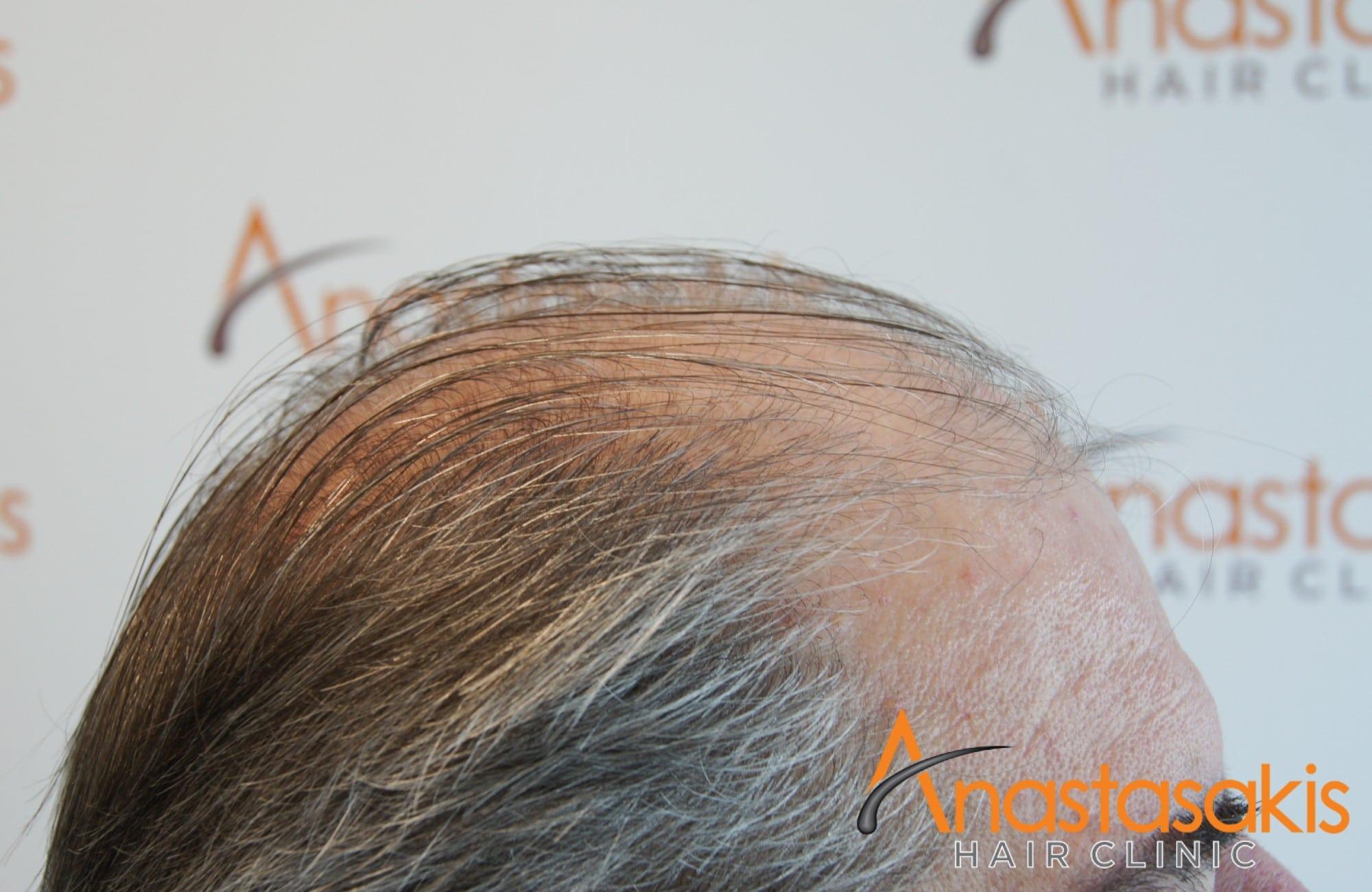 δεξι προφιλ πριν τη μεταμοσχευση μαλλιων με 4008 fus