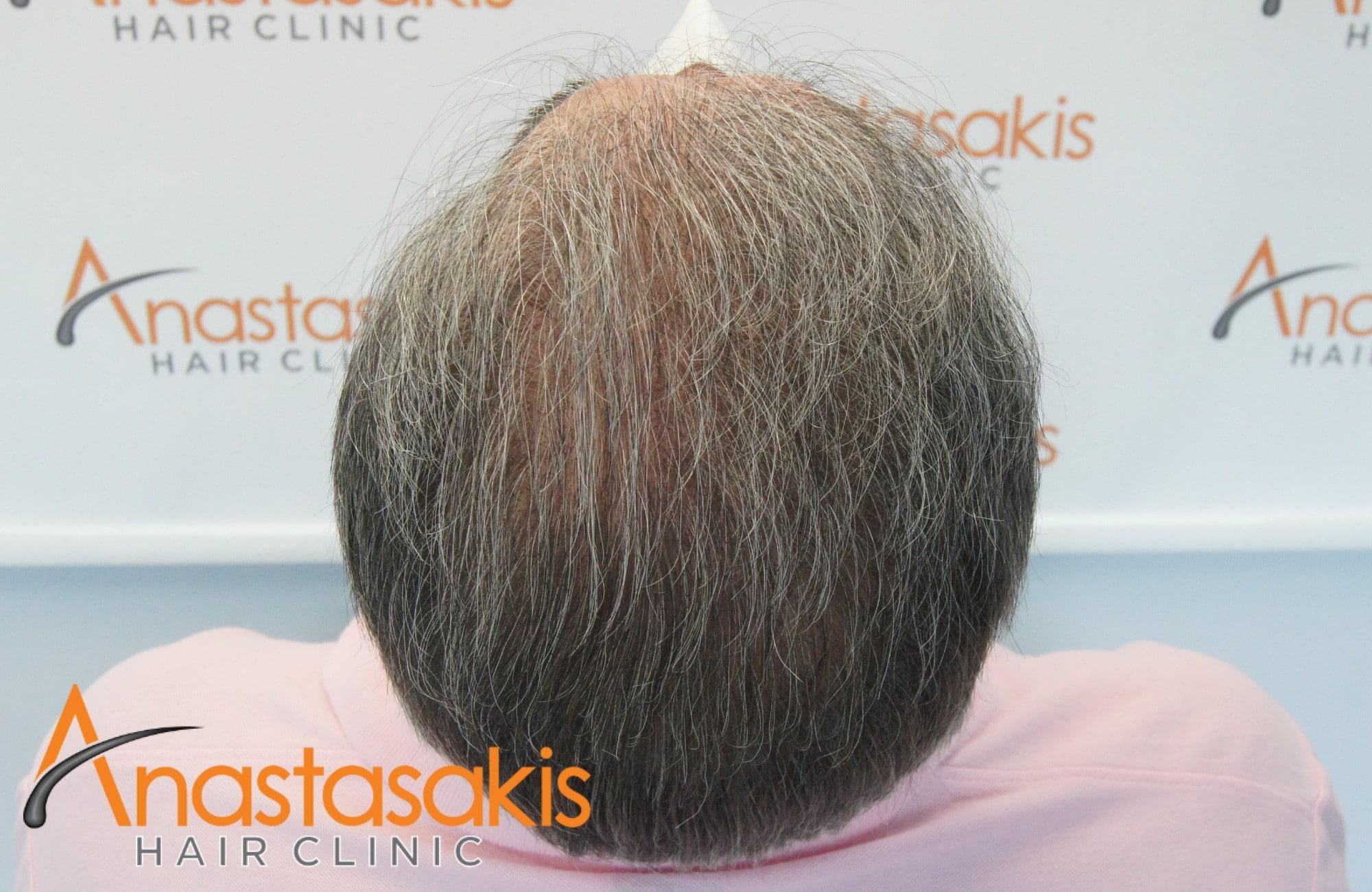 κορυφη 10 μηνες μετα τη μεταμοσχευση μαλλιων με 4008 fus