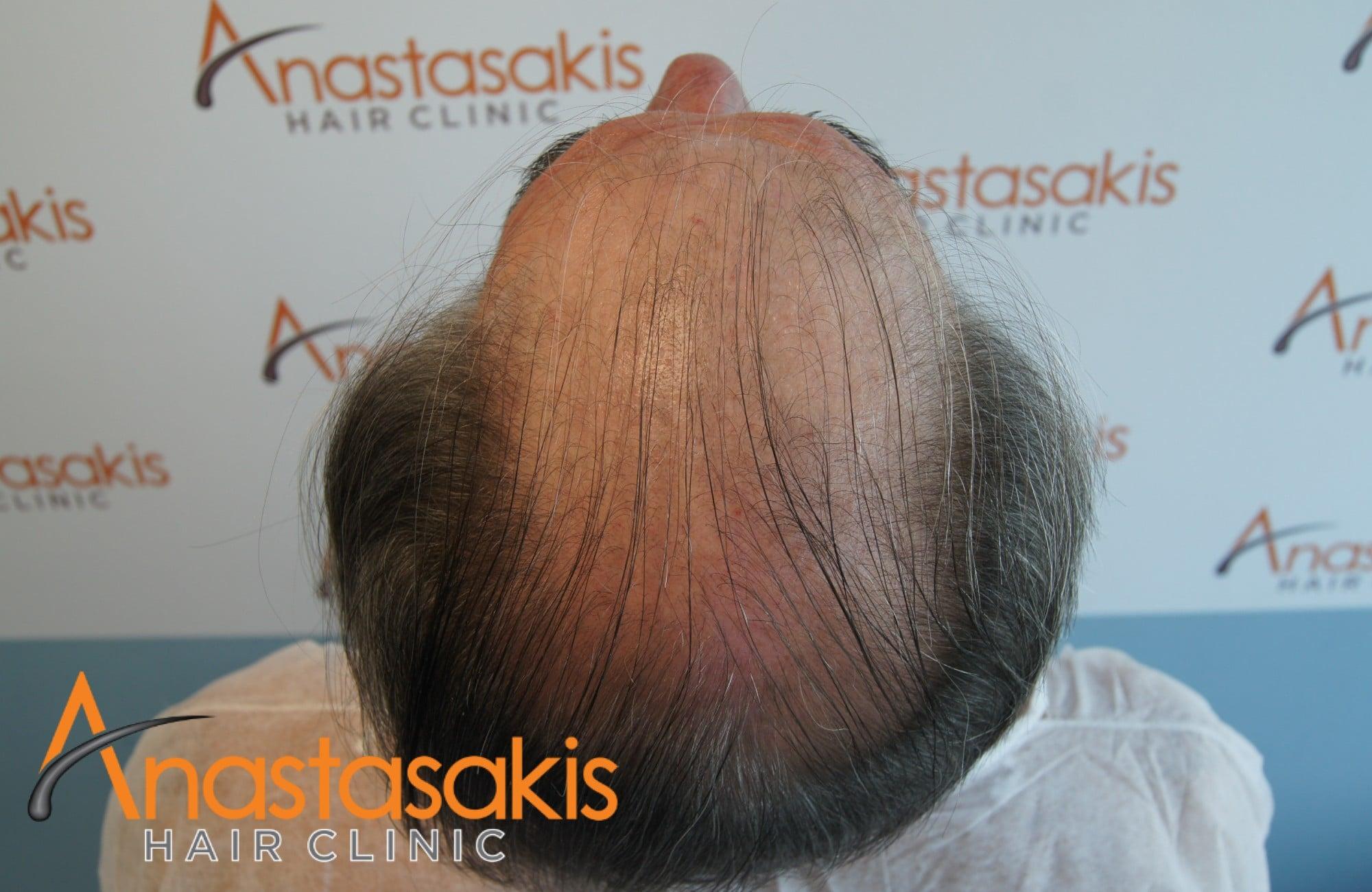 κορυφη πριν τη μεταμοσχευση μαλλιων με 4008 fus